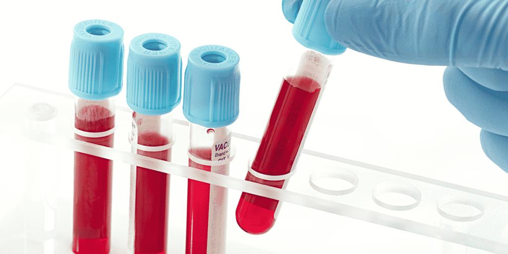 Помимо маркеров гепатита в обязательном порядке сдаются клинический и биохимический анализы крови
