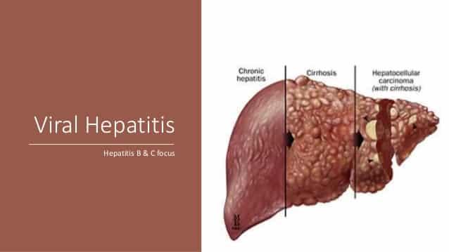 Сколько делается анализ на гепатит В и С в поликлинике?