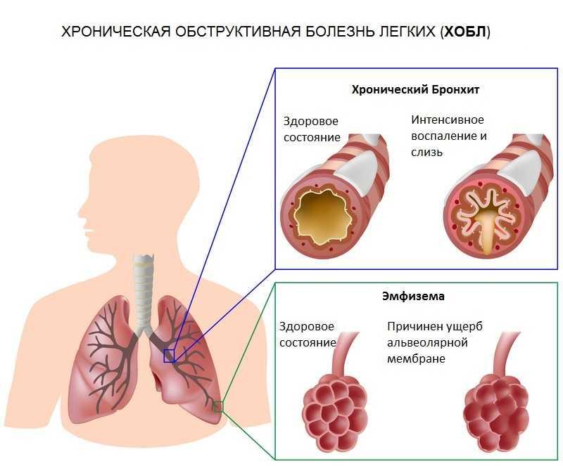 ХОБЛ, бронхит, эмфизема приводит к тяжелому диспноэ
