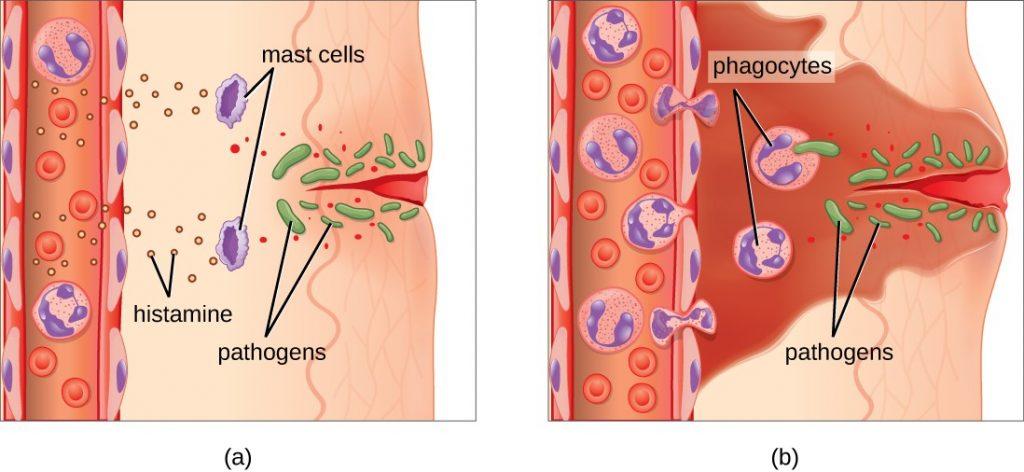 Воспалительная инфильтрация в области пореза