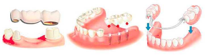 Функциональные пробы Гербста в стоматологии