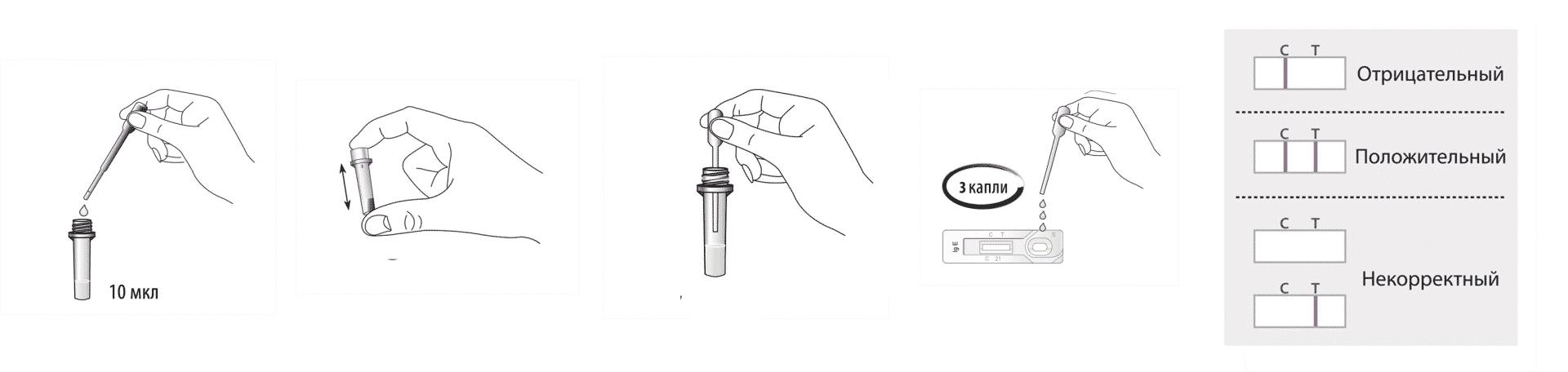 Методика проведения анализа на иммуноглобулин Е
