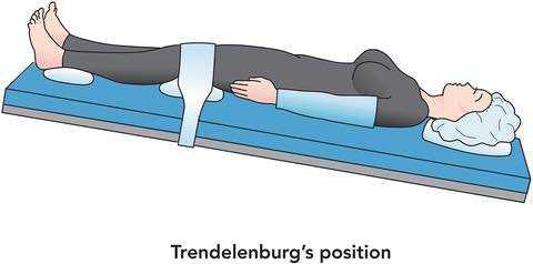 Больная в положении Тренделебурга