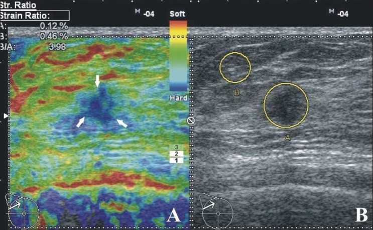 УЗИ молочных желез с эластографией: показания, как проводится, расшифровка результатов