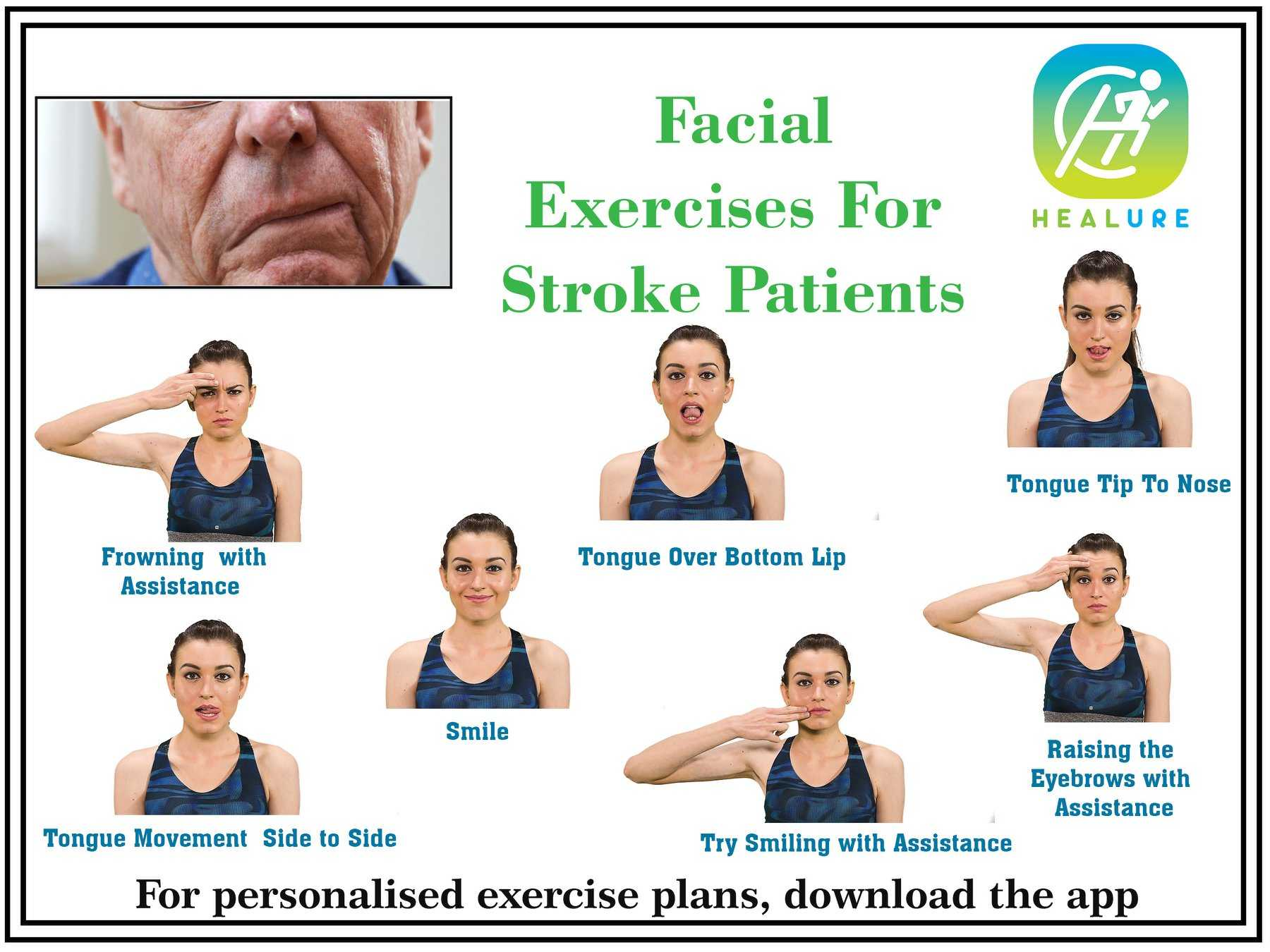 Упражнения для лица после инсульта