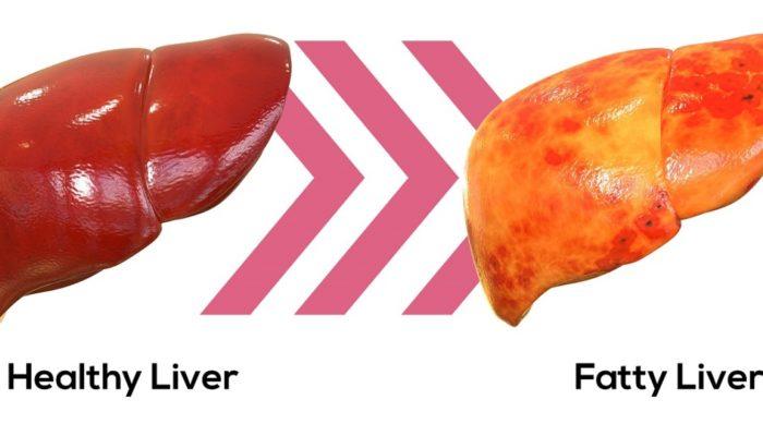 Можно ли вылечить жировой гепатоз