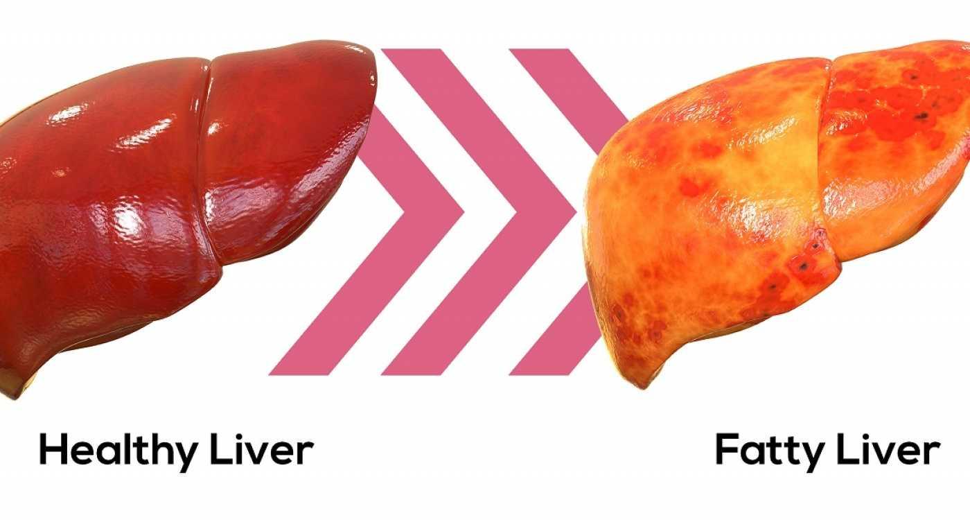 Как полностью вылечить жировой гепатоз печени: народные средства, диета, препараты